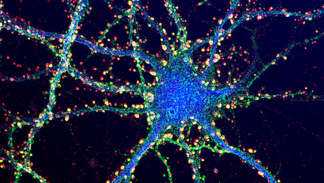 Dendrites Synapses